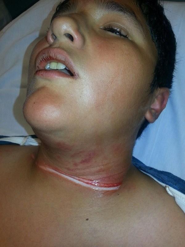 romeoville rope injury