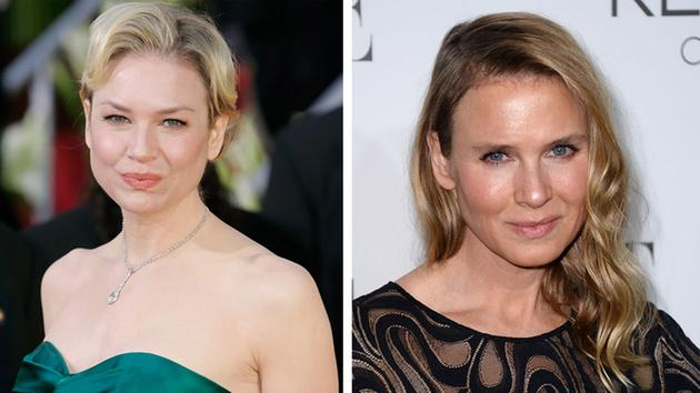 Actress Renee Zellweger Makes An Unusual Trasformation