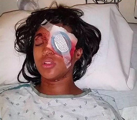 POLICE VIOLENCE: Pregnant Ferguson Woman Loses Eye After Police Shoot Bean Bag At Her