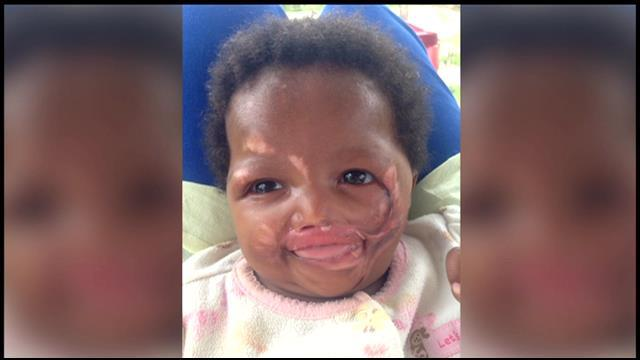 Cape Girardeau Mission Helps Save Baby Left For Dead After Being Set On Fire By Her Mother