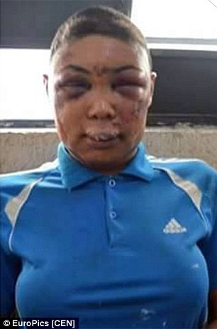 Images of Transgender Prisoner Whose Face Was Completley Smashed By Police After They Stripped Her & Shaved Her Head Has Sparked Outrage In Brazil