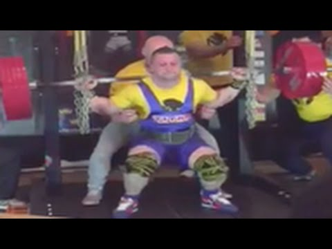 Horrific Weightlifting Accident, Watch As Squatter Rips His Quads Right From The Bone! [ Video]