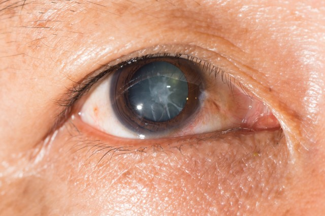 http://www.iflscience.com/health-and-medicine/one-step-closer-cataract-dissolving-eye-drops