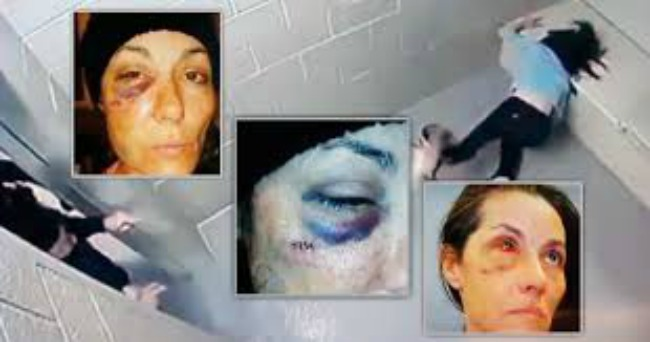 Village of Skokie Agrees to Pay $875K For Excessive Force Of A Female Prisoner