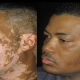 Medical News: Doctors Find A Cure For Skin Condition Vitiligo