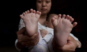 Chinese Baby Born With 31Fingers & Toes; Parents Are Praying For Surgery