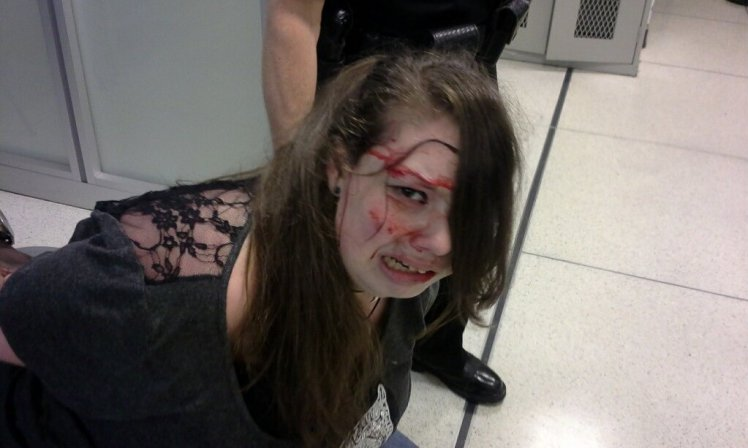Aftermath of Hannah Cohen, 18, being brutally slammed to the floor by airport staff. Photo Credit: Metro