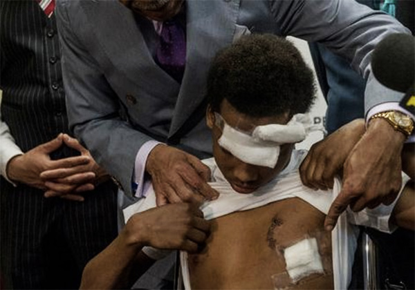 NYPD Smashes 14 Year Old boys Head & Chest Through Window Nearly Killing Him & No Charges Will be Filed Against Cop