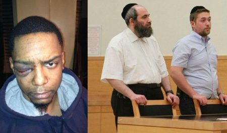 Hasidic Jewish Men Beat & Blinded Gay Black Man In One Eye & Only gets 150 Hours Of Community Service