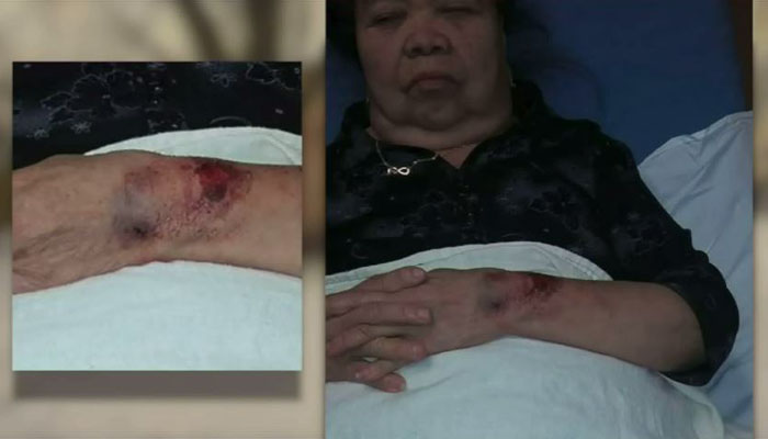 Police Sick K-9 Unit On 81-Year Old Woman Accusing Her Of Breaking Into Her Own House, She Was Bitten By Dog