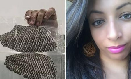 Talapia Fish Skin Is Used To Make A Vagina For Woman Born Without One