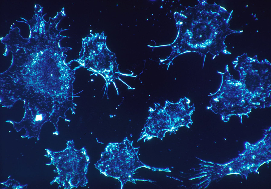 HEALTH NEWS: Cancer Cure Me Be One Year Away According To Israeli Scientists
